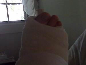 Photographic evidence of the broken ankle incident...